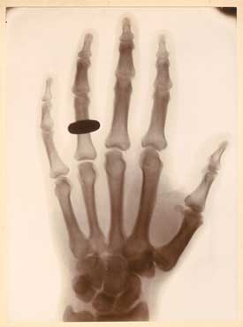 Henri van Heurck, X-ray of a hand with a ring, 1896; Printing-out paper print; 6 3/4 x 4 1/2 in. (17.2 x 11.5 cm); Courtesy Galerie GÉRARD-LÉVY, Paris